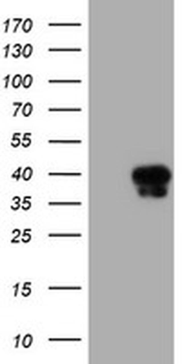 SERPINA5 Mouse anti-Human, Clone: OTI2H10, liquid, TrueMAB  100 µL;
