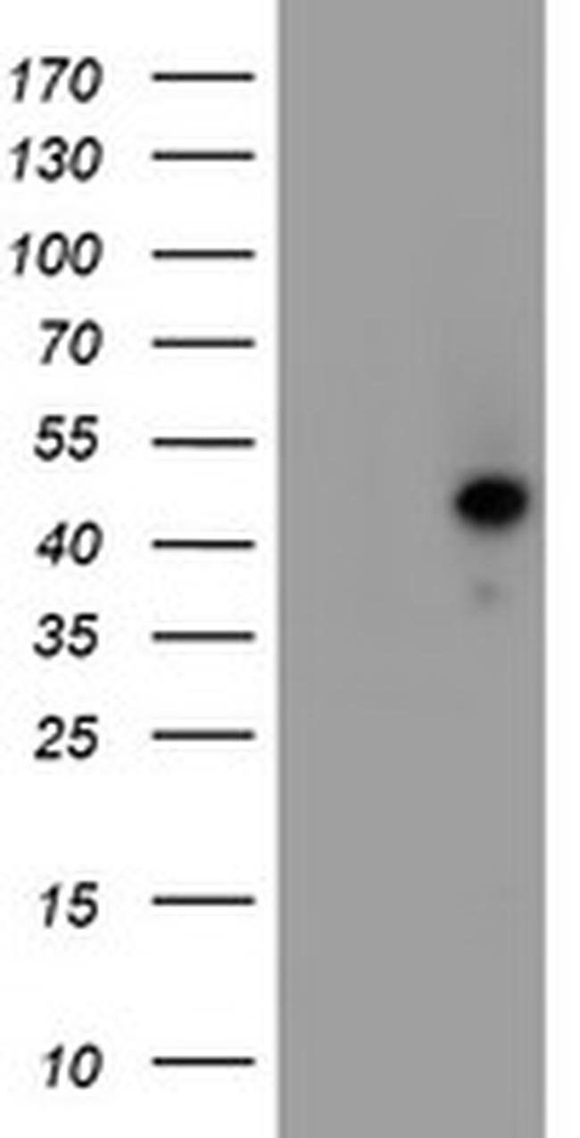 SERPINA5 Mouse anti-Human, Clone: OTI2D12, liquid, TrueMAB  100 µL;