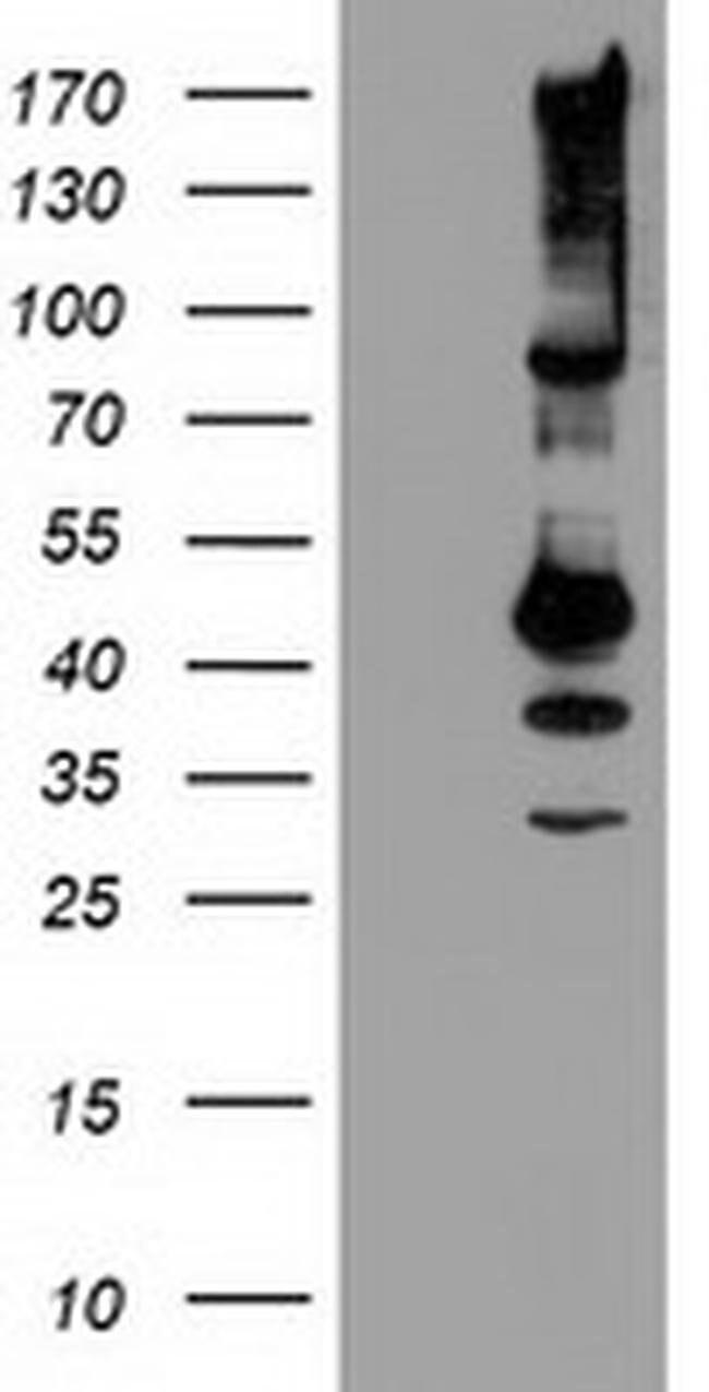 SERPINB13 Mouse anti-Human, Clone: OTI2B6, liquid, TrueMAB  100 µL;