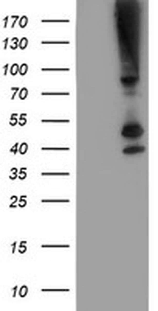 SERPINB13 Mouse anti-Human, Mouse, Rat, Clone: OTI1A7, liquid, TrueMAB