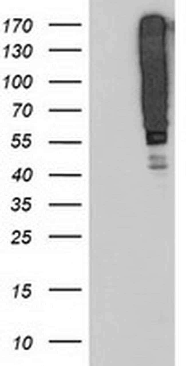SERPINB13 Mouse anti-Human, Mouse, Clone: OTI1D4, liquid, TrueMAB  100
