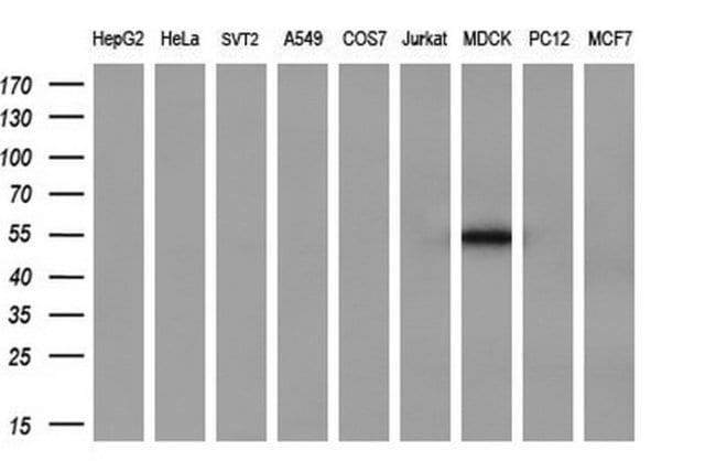 SERPINB2 Mouse anti-Human, Clone: OTI1F6, liquid, TrueMAB  100 µL;