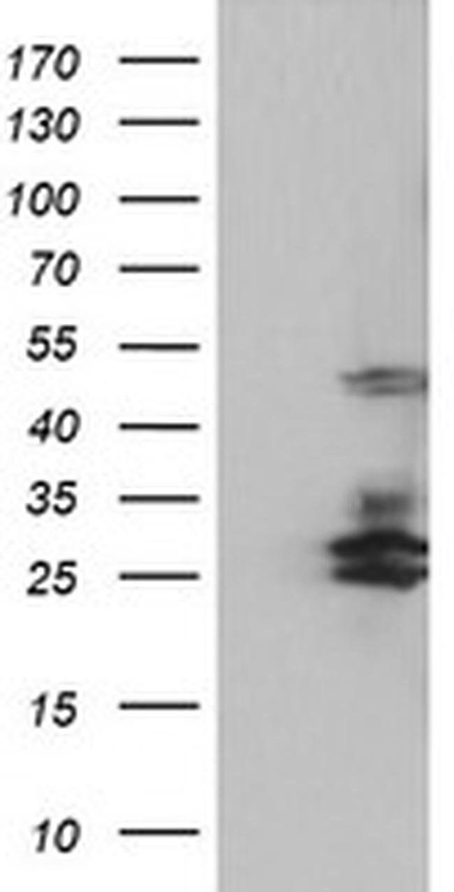 SERPINB2 Mouse anti-Human, Clone: OTI4E6, liquid, TrueMAB  100 µL;