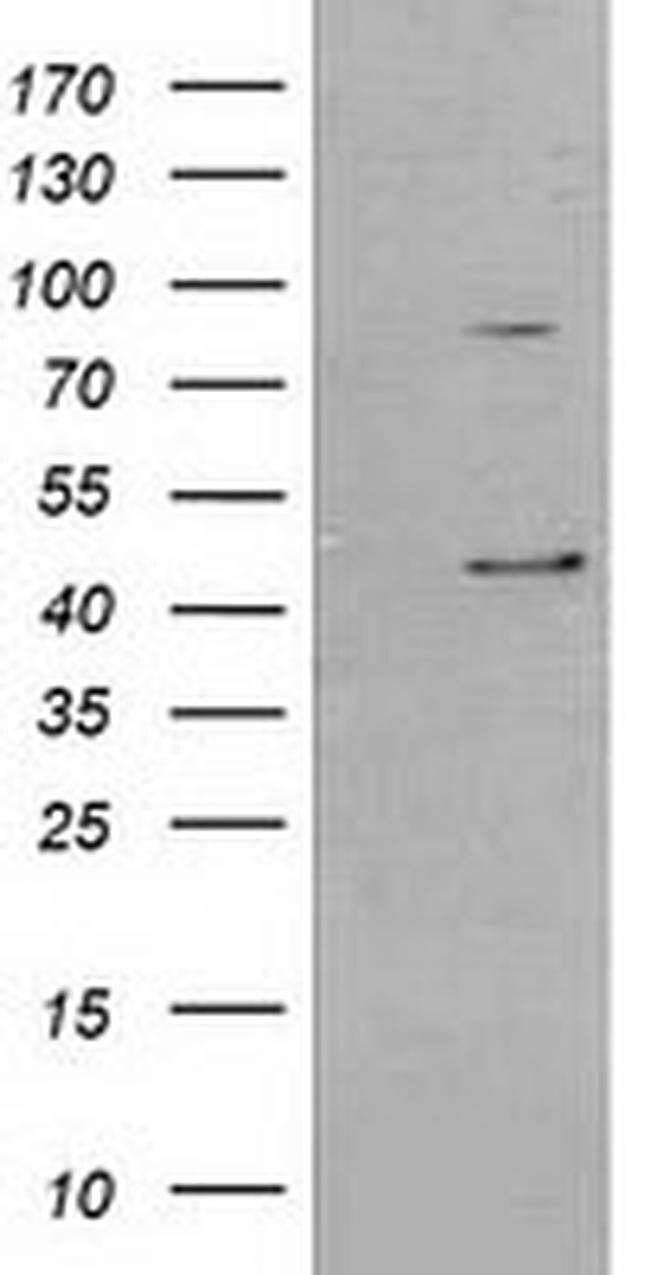 SERPINB3 Mouse anti-Canine, Human, Rat, Clone: OTI3C2, liquid, TrueMAB
