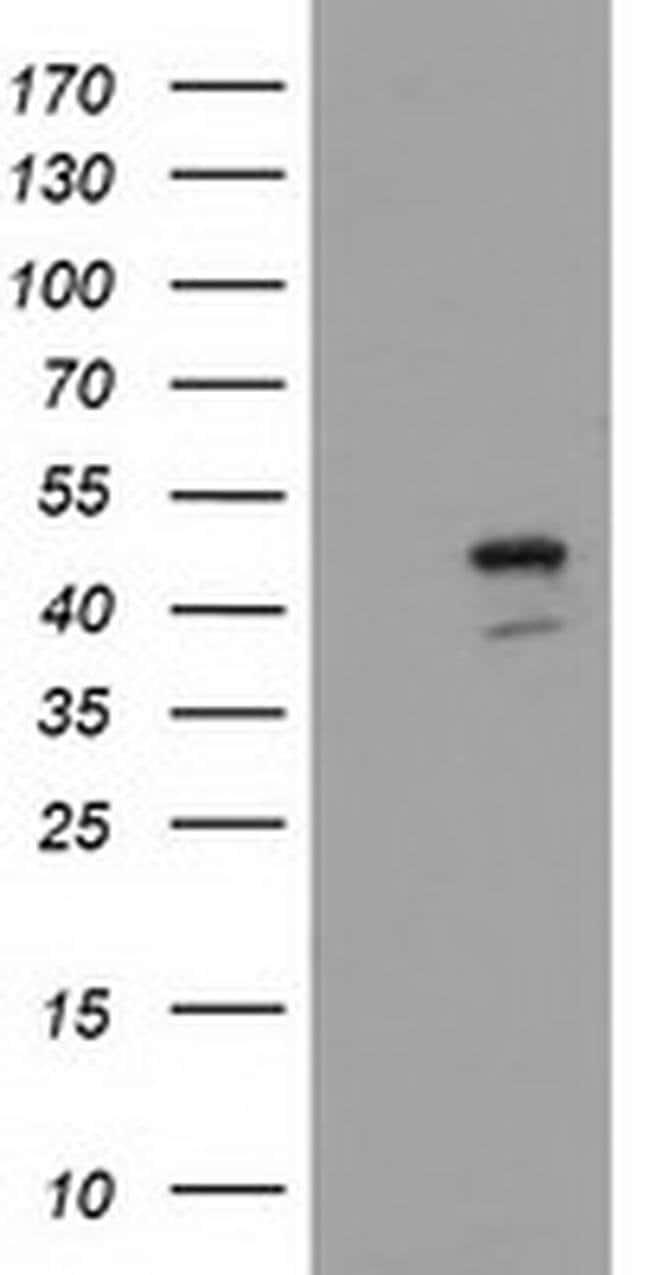 SERPINB4 Mouse anti-Human, Clone: OTI1G6, liquid, TrueMAB  100 µL;