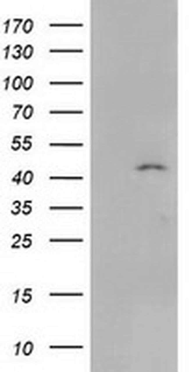 SERPINB4 Mouse anti-Human, Clone: OTI4C8, liquid, TrueMAB  100 µL;
