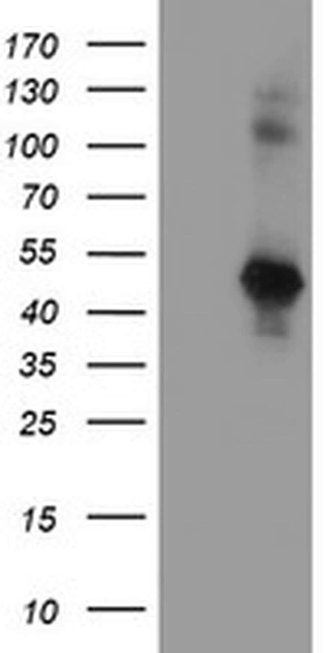 SERPINE2 Mouse anti-Human, Clone: OTI3B12, liquid, TrueMAB  100 µL;