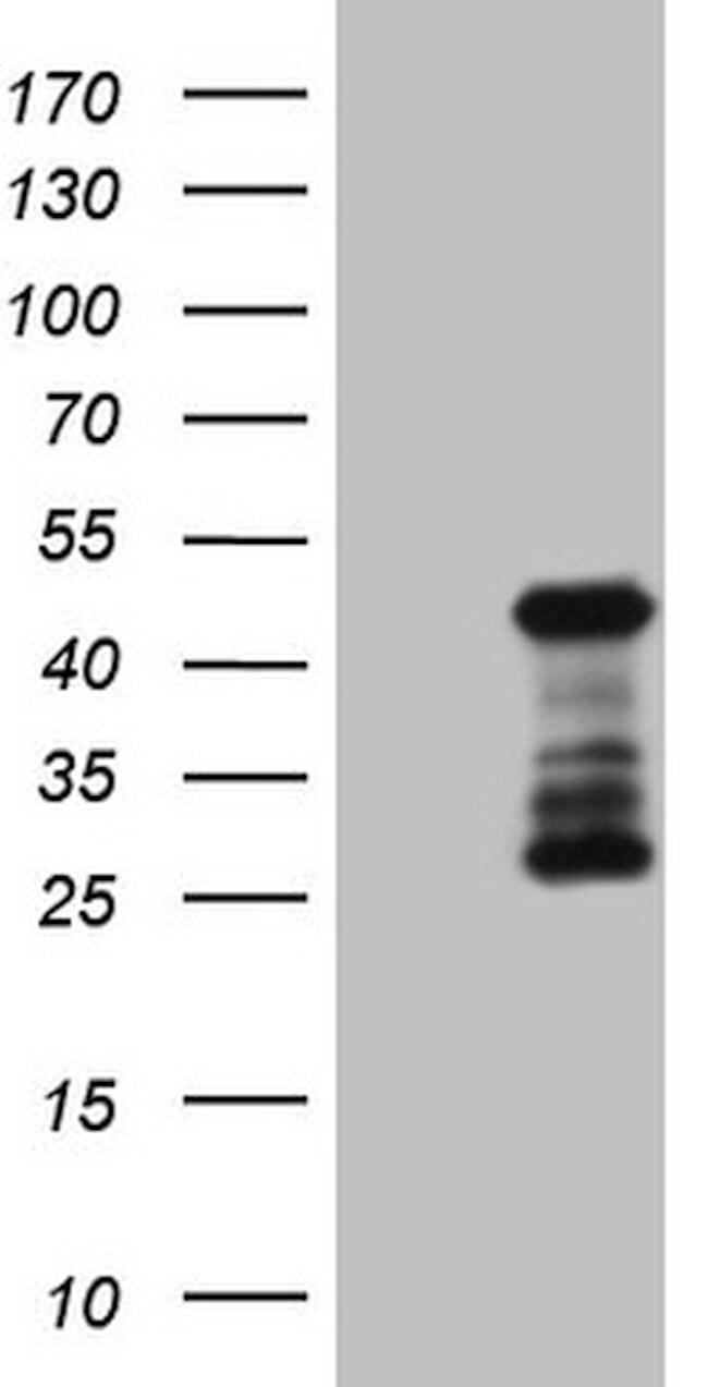 SETD8 Mouse anti-Human, Clone: OTI5E5, lyophilized, TrueMAB  100 µg;