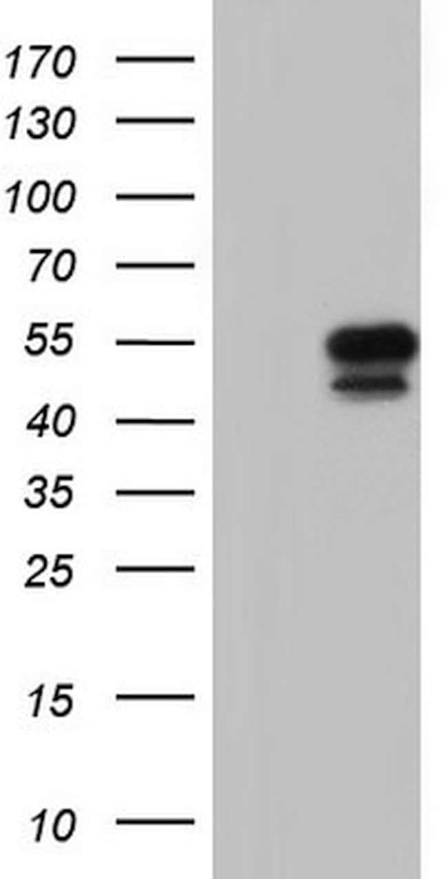 SGK196 Mouse anti-Human, Clone: OTI2E6, lyophilized, TrueMAB  100 µg;