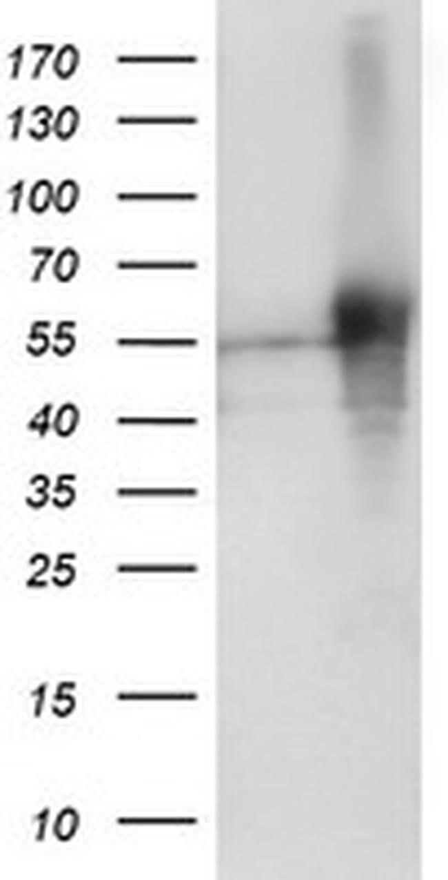 SH2D2A Mouse anti-Human, Clone: OTI6G1, liquid, TrueMAB  100 µL; Unconjugated