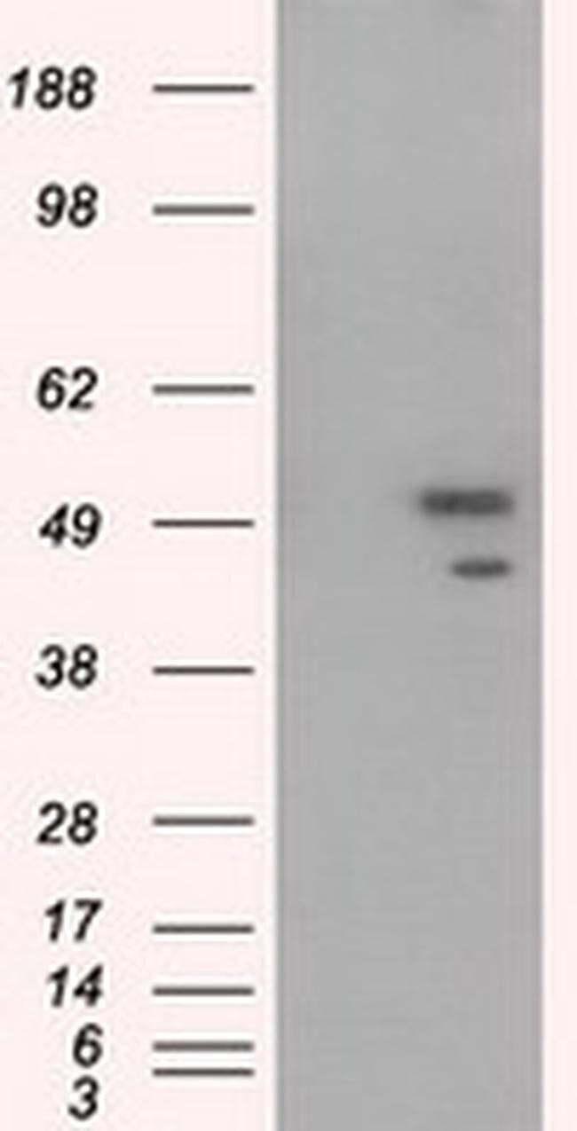 SHC1 Mouse anti-Human, Clone: OTI1D3, liquid, TrueMAB  100 µL; Unconjugated