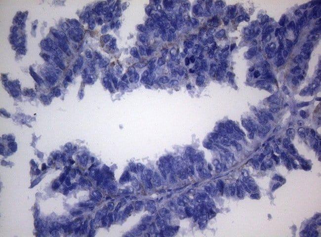 SHMT2 Mouse anti-Human, Clone: OTI1E6, lyophilized, TrueMAB  100 µg;
