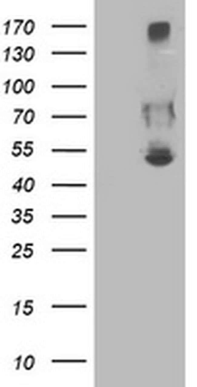 SHPK Mouse anti-Human, Clone: OTI1D2, liquid, TrueMAB  100 µL; Unconjugated