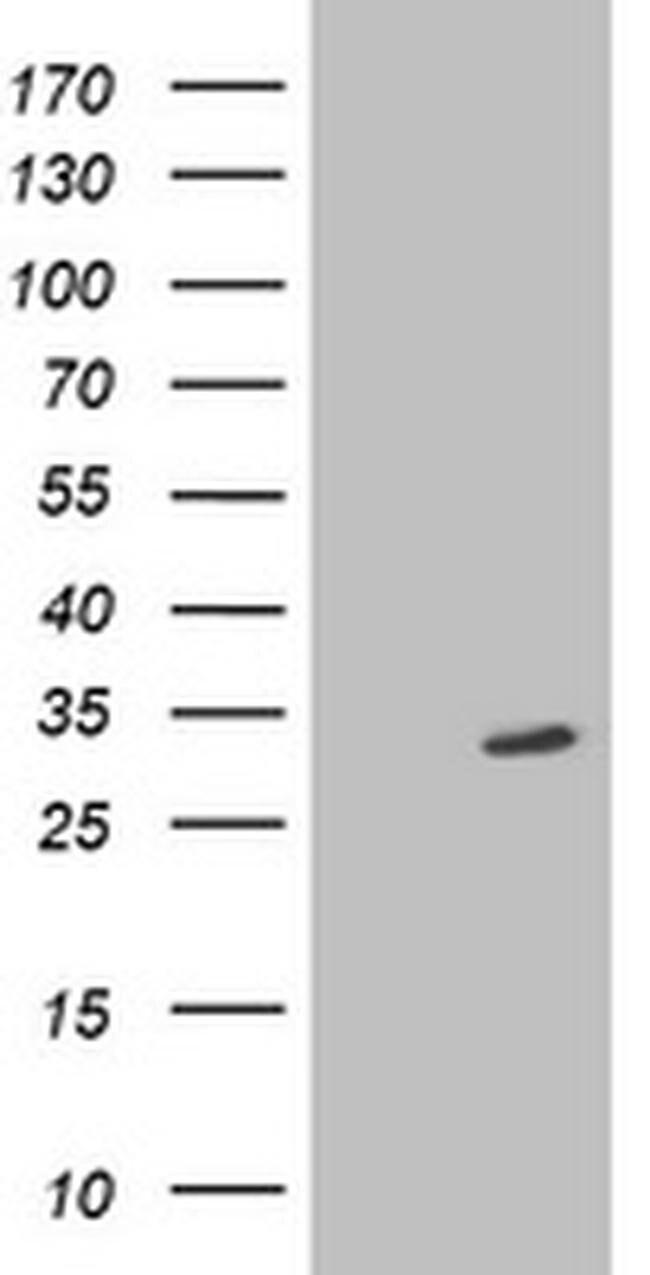 SIRT5 Mouse anti-Human, Clone: OTI2C4, liquid, TrueMAB  100 µL; Unconjugated