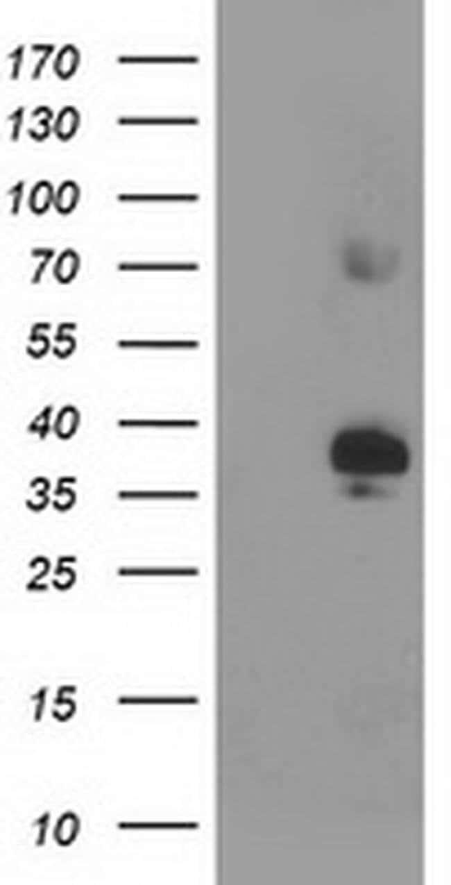 SIRT6 Mouse anti-Human, Clone: OTI1G3, liquid, TrueMAB  30 µL; Unconjugated