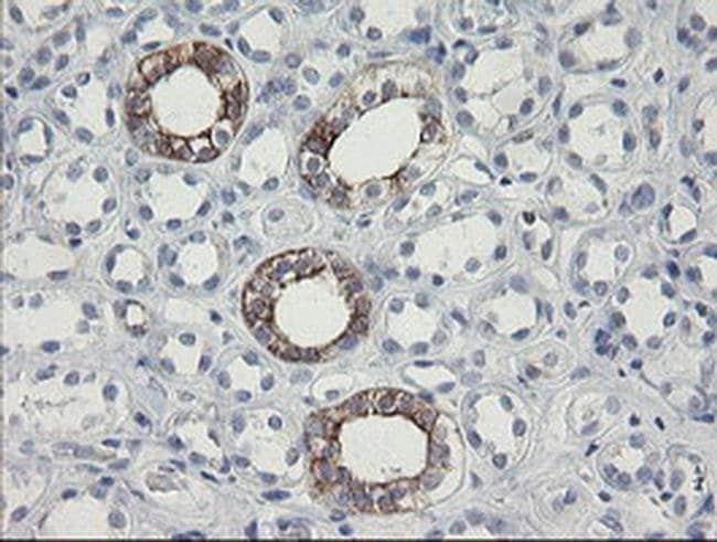 SLA2 Mouse anti-Human, Clone: OTI3E3, liquid, TrueMAB  100 µL; Unconjugated