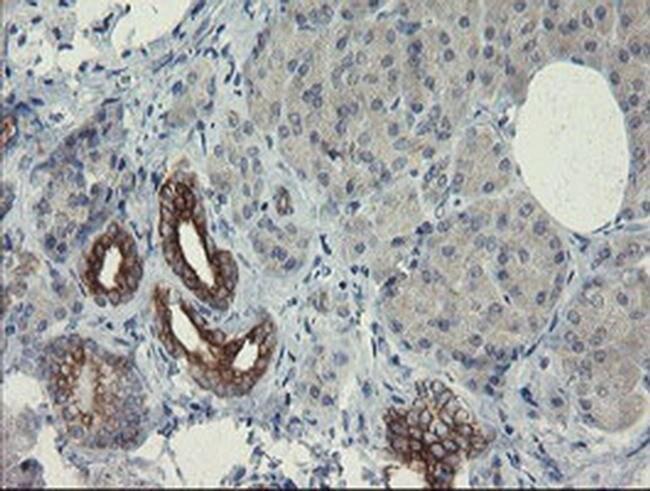 SLA2 Mouse anti-Human, Clone: OTI1E7, liquid, TrueMAB  100 µL; Unconjugated