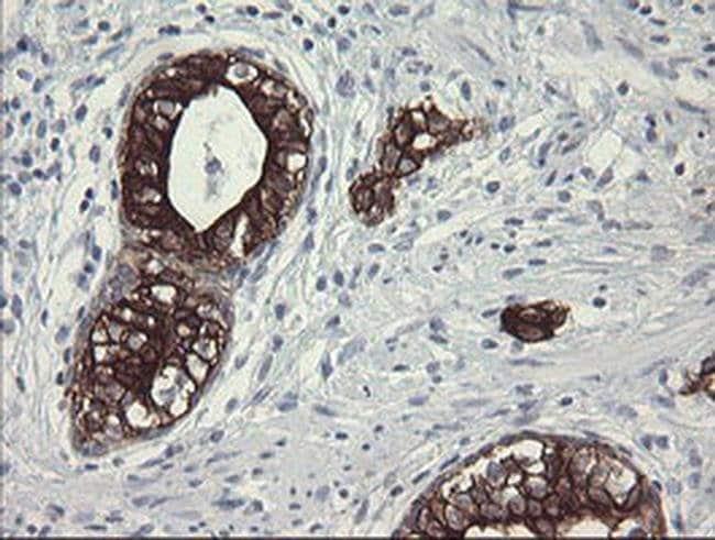 SLA2 Mouse anti-Human, Clone: OTI3A7, liquid, TrueMAB  100 µL; Unconjugated