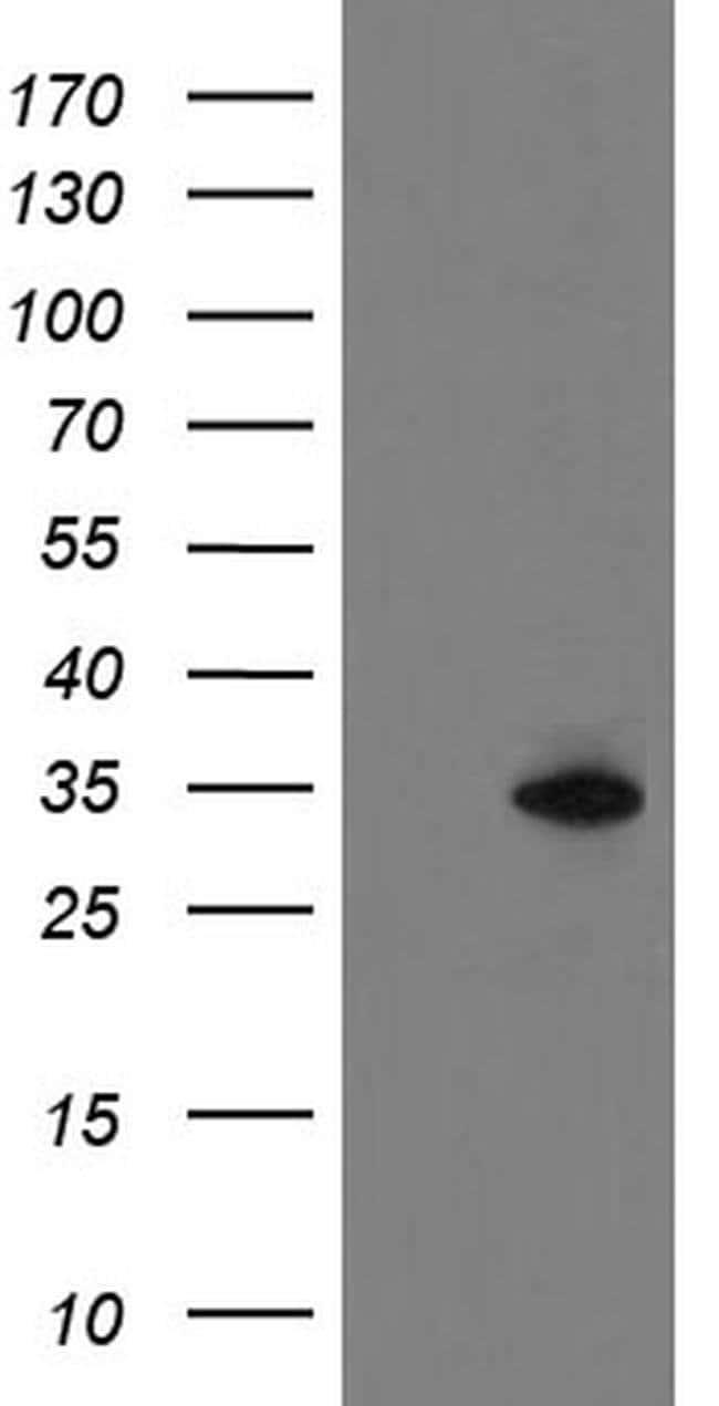 SLA2 Mouse anti-Human, Clone: OTI1D8, liquid, TrueMAB  100 µL; Unconjugated