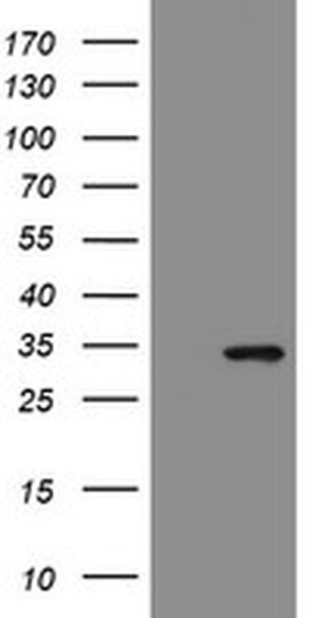 SLA2 Mouse anti-Human, Clone: OTI1D2, liquid, TrueMAB  100 µL; Unconjugated