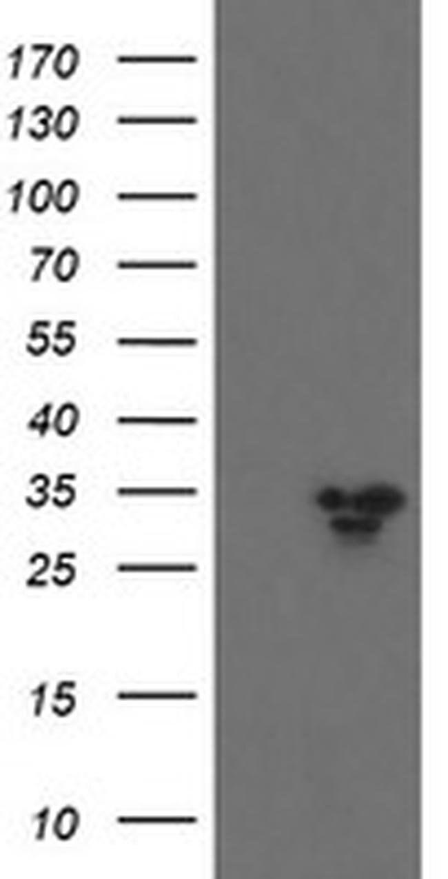 SLA2 Mouse anti-Human, Clone: OTI2G3, liquid, TrueMAB  100 µL; Unconjugated