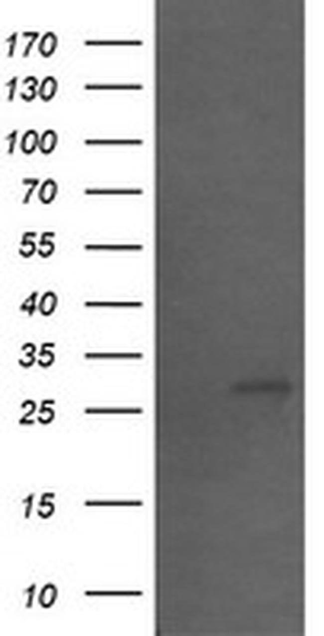 SLA2 Mouse anti-Human, Clone: OTI3D4, liquid, TrueMAB  100 µL; Unconjugated