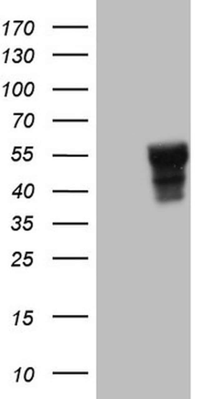 SLAMF7 Mouse anti-Human, Clone: OTI3B3, lyophilized, TrueMAB  100 µg;