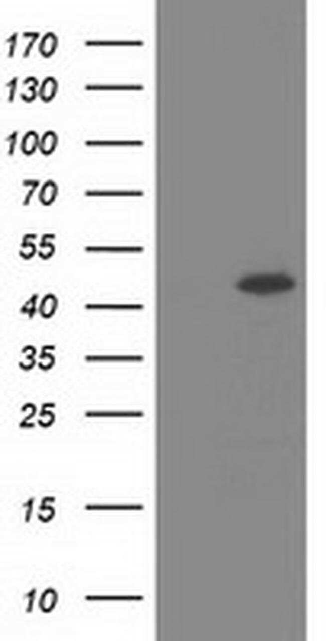 SLFNL1 Mouse anti-Human, Clone: OTI4E5, liquid, TrueMAB  100 µL; Unconjugated