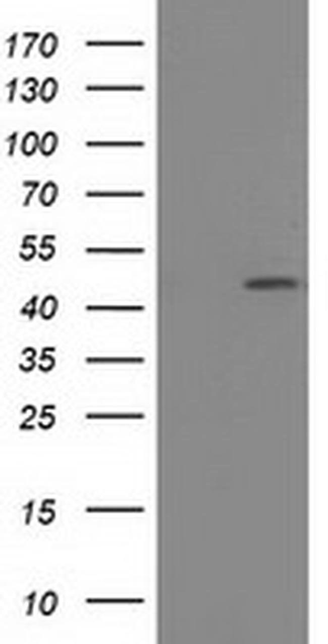 SLFNL1 Mouse anti-Human, Clone: OTI1C4, liquid, TrueMAB  100 µL; Unconjugated