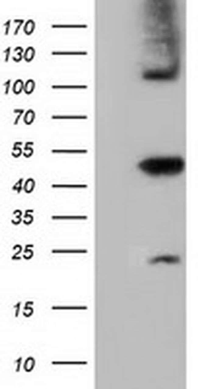SLFNL1 Mouse anti-Human, Clone: OTI4F7, liquid, TrueMAB  100 µL; Unconjugated