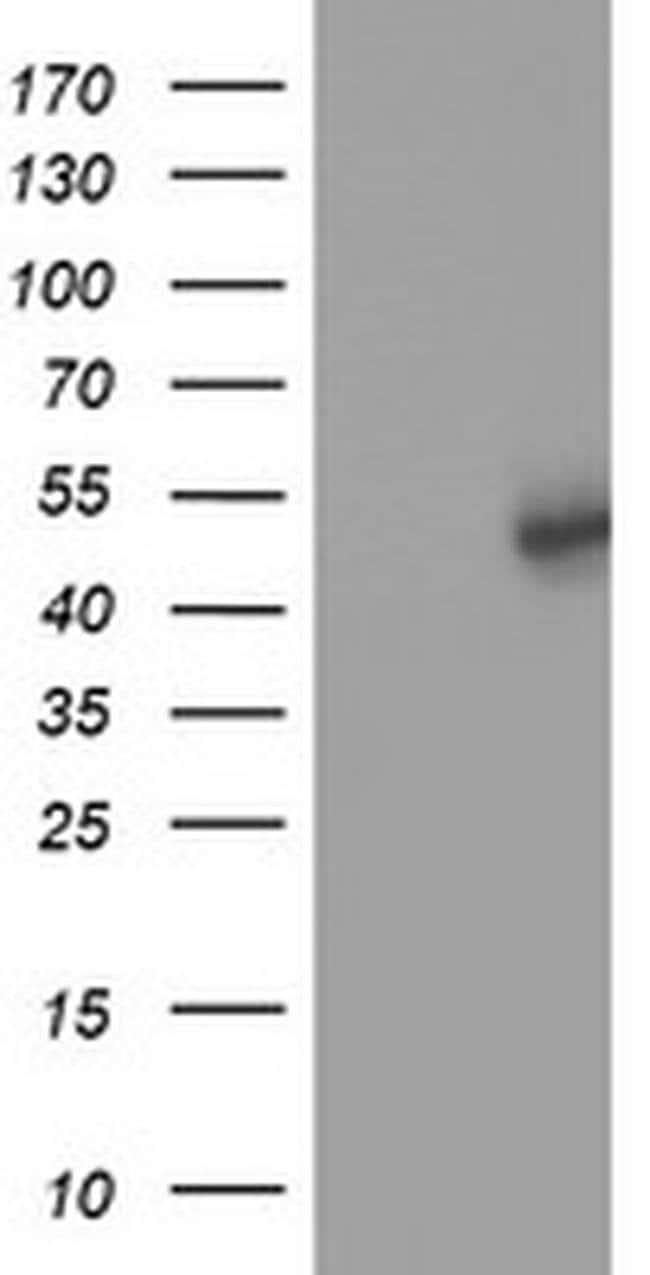 SLFNL1 Mouse anti-Human, Clone: OTI1G2, liquid, TrueMAB  100 µL; Unconjugated