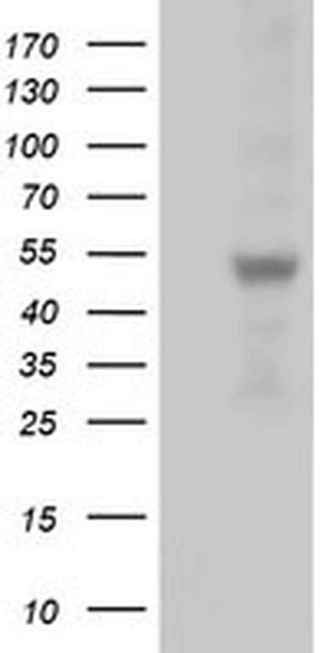 SLFNL1 Mouse anti-Human, Clone: OTI5C3, liquid, TrueMAB  100 µL; Unconjugated