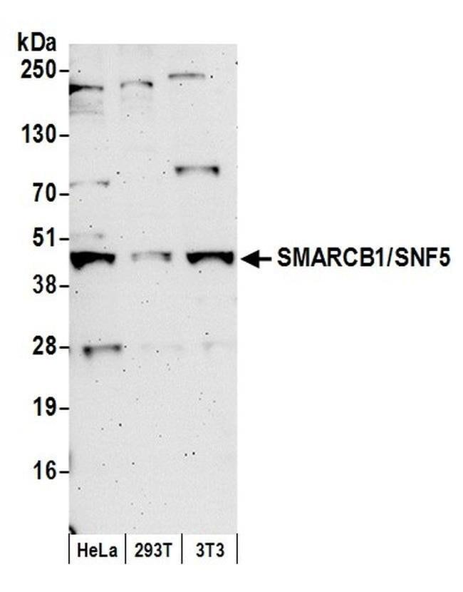 SMARCB1/SNF5, Polyclonal, Bethyl Laboratories  100 µL; Unconjugated