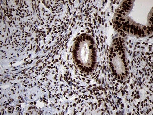 SMC1A Mouse anti-Human, Mouse, Clone: OTI3G4, lyophilized, TrueMAB  100