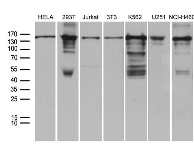 SMC1A Mouse anti-Human, Mouse, Clone: OTI11E1, lyophilized, TrueMAB  100