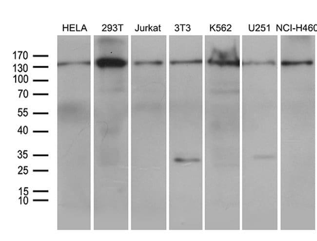 SMC1A Mouse anti-Human, Mouse, Clone: OTI1C5, lyophilized, TrueMAB  100