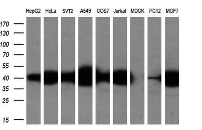 SMS Mouse anti-Human, Clone: OTI5F2, liquid, TrueMAB  100 µL; Unconjugated