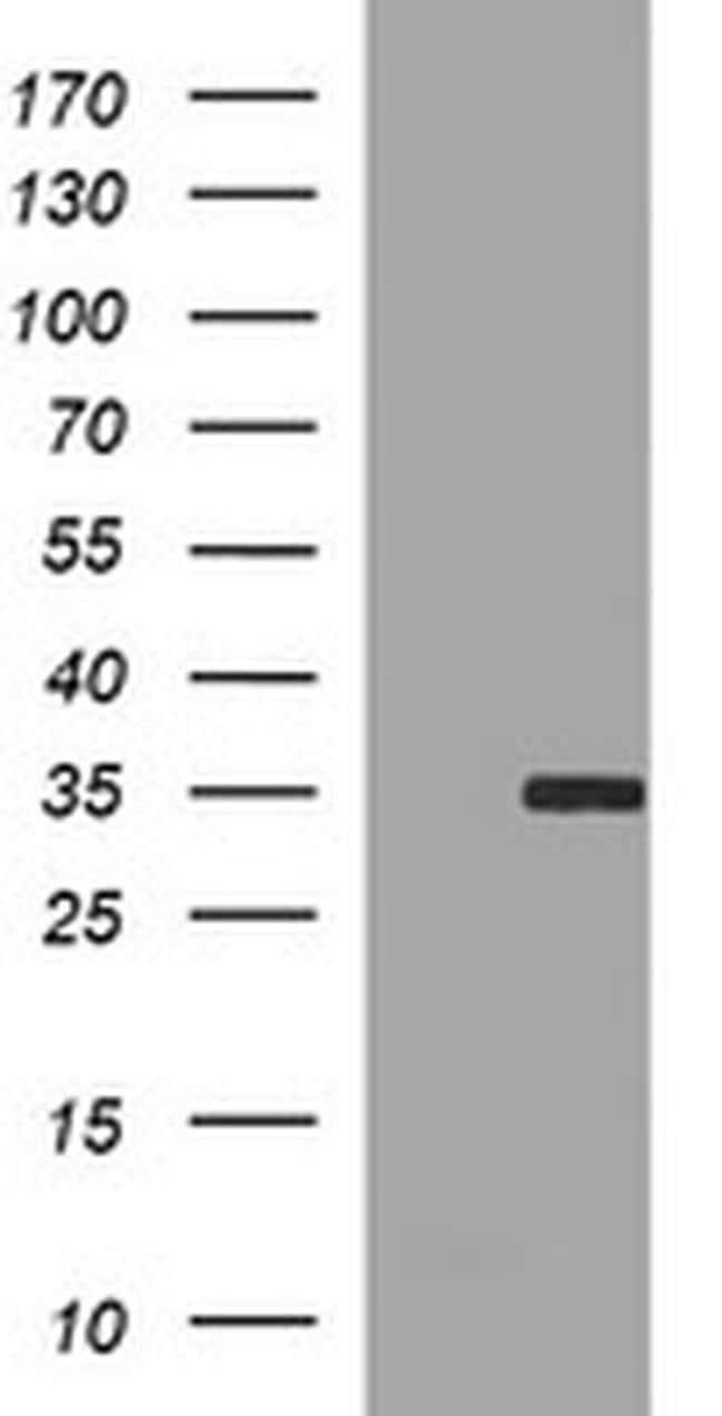 SNAI1 Mouse anti-Human, Clone: OTI1H7, liquid, TrueMAB  100 µL; Unconjugated