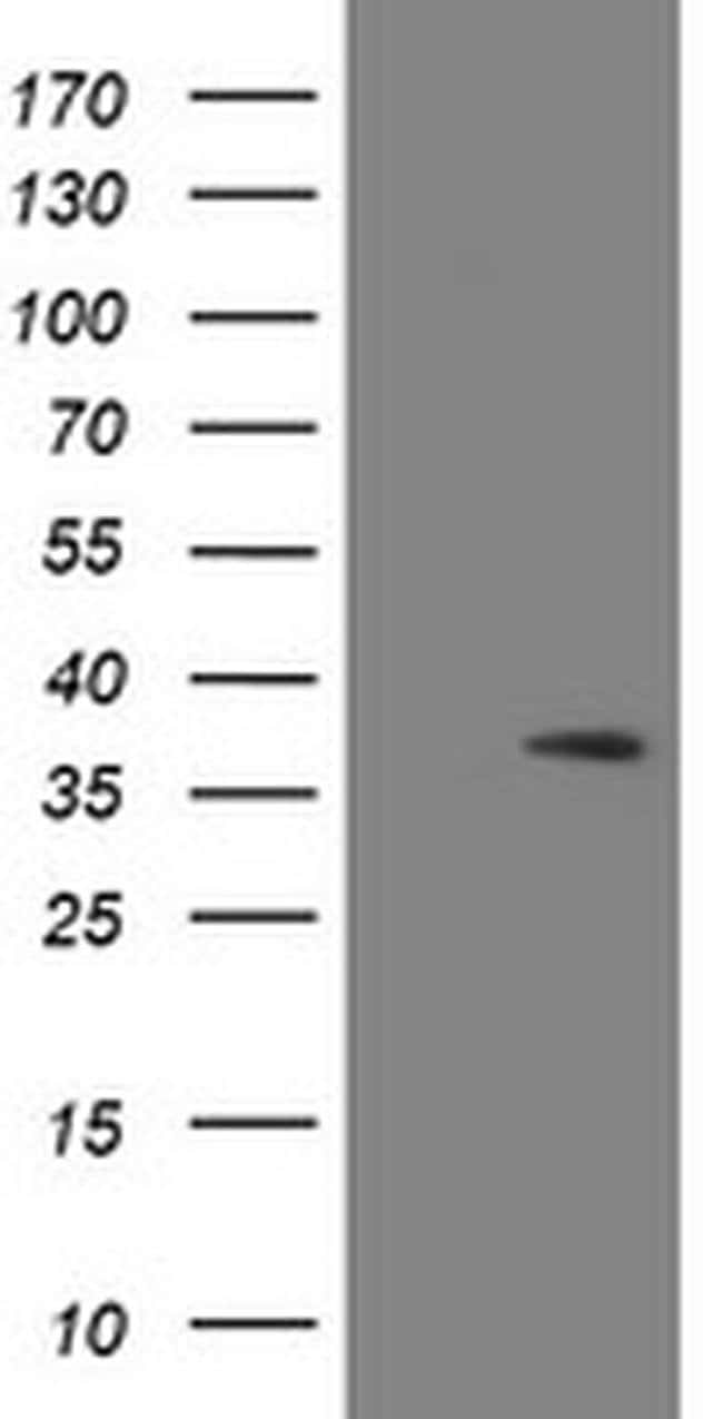 SNAI2 Mouse anti-Human, Clone: OTI2A6, liquid, TrueMAB  100 µL; Unconjugated