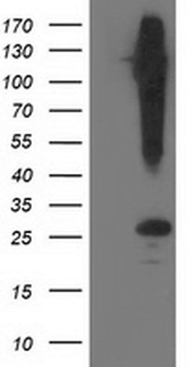 SNAP25 Mouse anti-Human, Clone: OTI4G5, liquid, TrueMAB  100 µL; Unconjugated