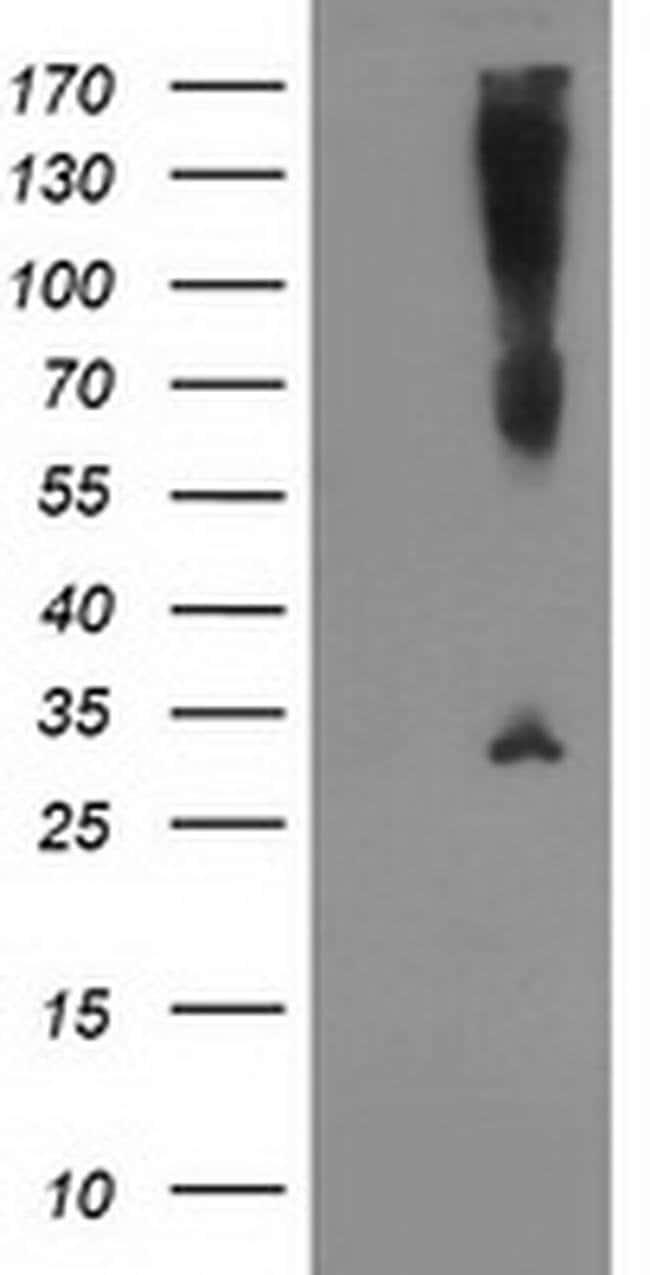 SNAP25 Mouse anti-Human, Clone: OTI4C6, liquid, TrueMAB  100 µL; Unconjugated