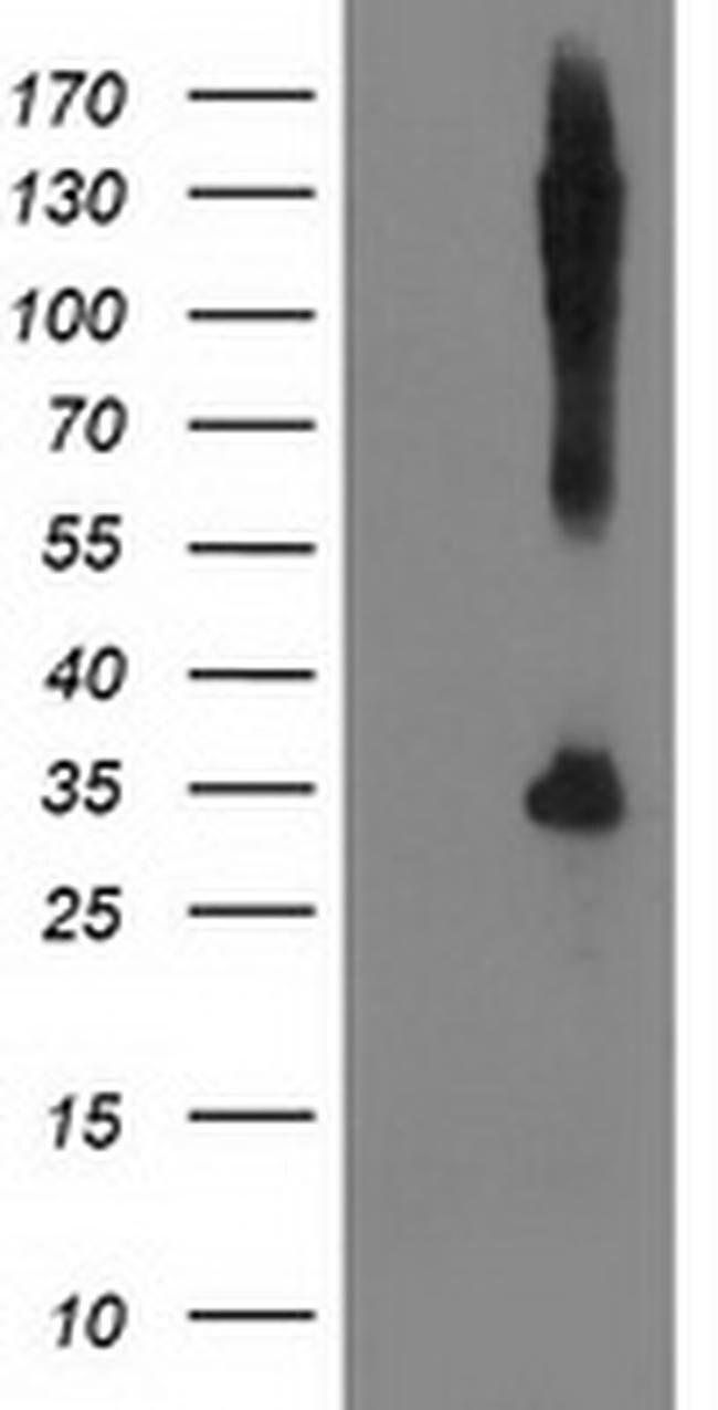SNAP25 Mouse anti-Human, Clone: OTI1G2, liquid, TrueMAB  100 µL; Unconjugated