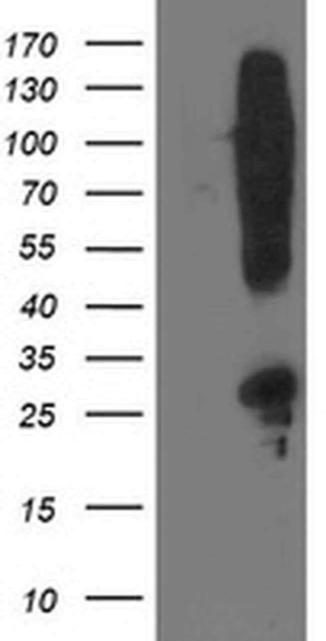 SNAP25 Mouse anti-Human, Clone: OTI4B5, liquid, TrueMAB  100 µL; Unconjugated