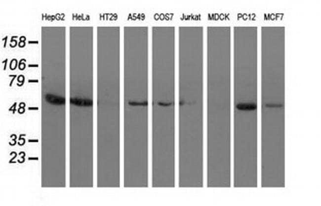 SNTA1 Mouse anti-Human, Rat, Clone: OTI2B9, liquid, TrueMAB  100 µL;