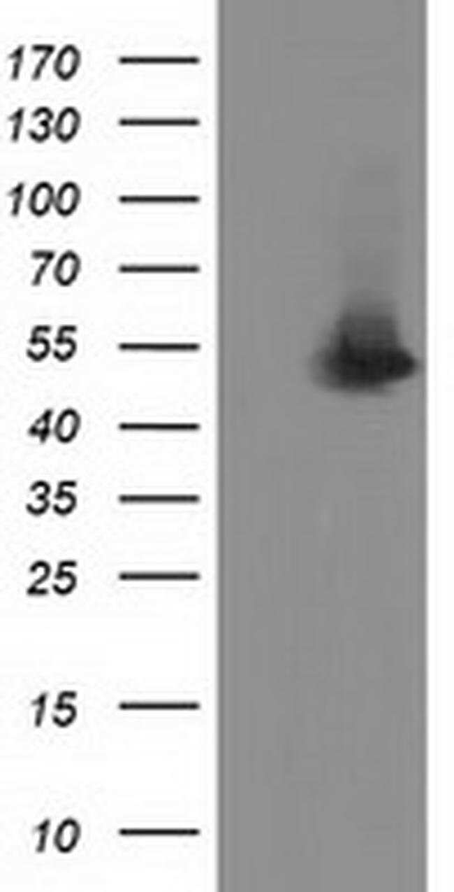 SNTA1 Mouse anti-Human, Clone: OTI1E9, liquid, TrueMAB  100 µL; Unconjugated