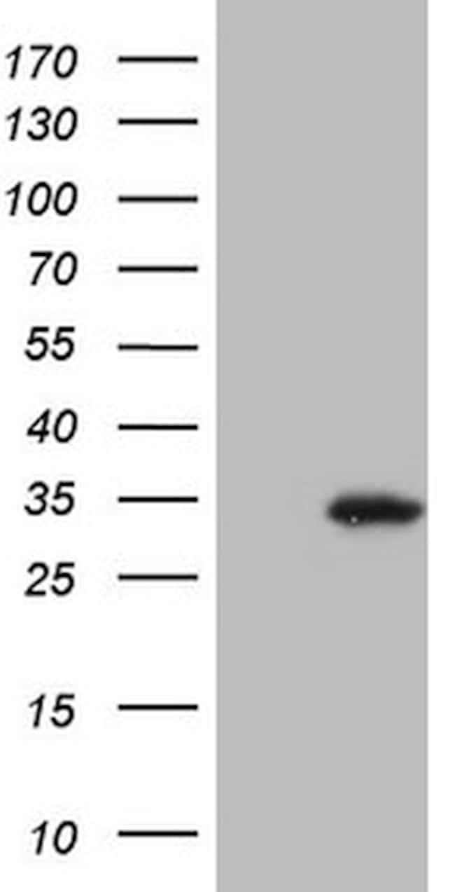SNX10 Mouse anti-Human, Clone: OTI3F1, lyophilized, TrueMAB  100 µg;