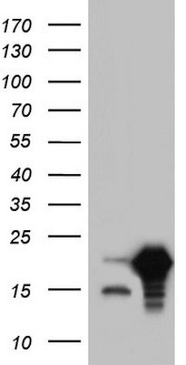 SNX12 Mouse anti-Human, Clone: OTI5C3, lyophilized, TrueMAB  100 µg;