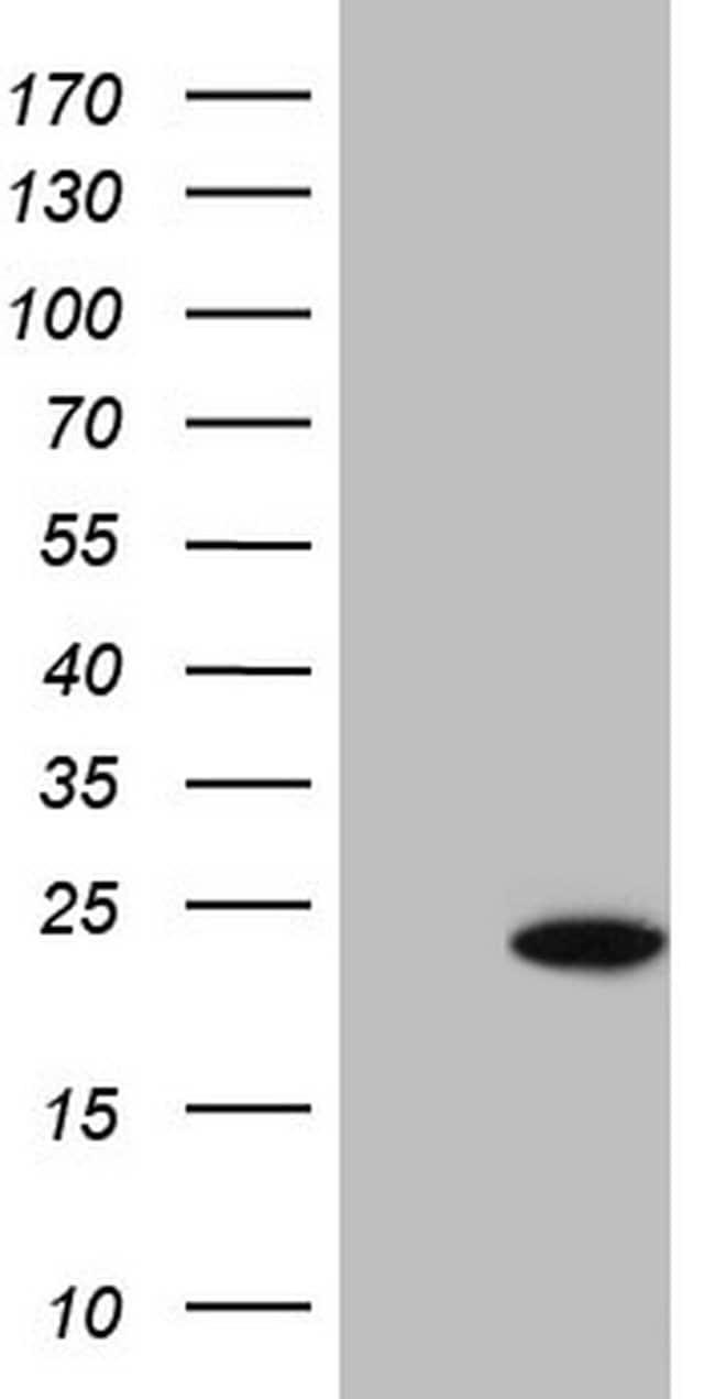 SNX12 Mouse anti-Human, Clone: OTI8B3, lyophilized, TrueMAB  100 µg;