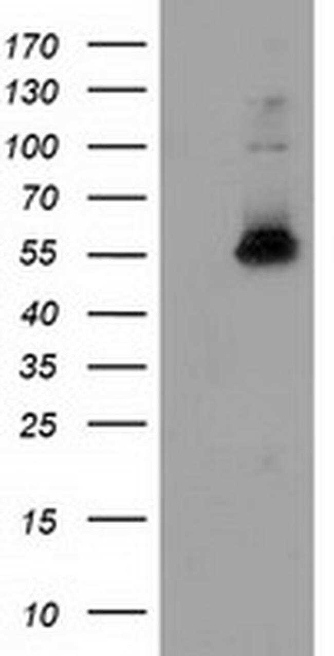 SNX8 Mouse anti-Human, Clone: OTI1D12, liquid, TrueMAB  100 µL; Unconjugated
