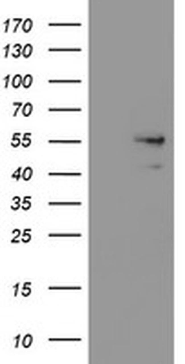 SNX8 Mouse anti-Human, Clone: OTI1A1, liquid, TrueMAB  100 µL; Unconjugated